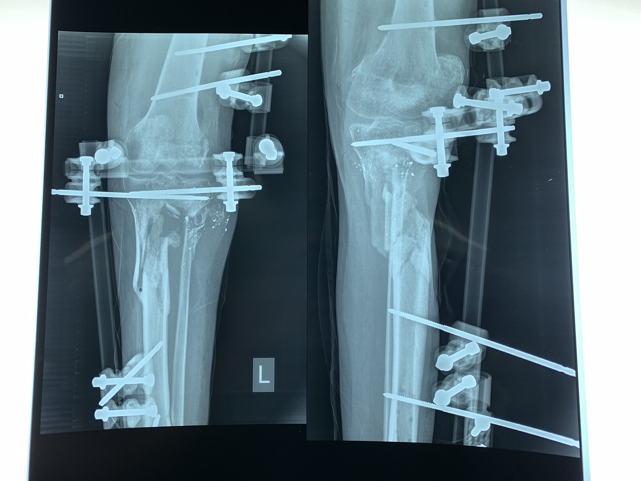 An x-ray shows the bone gap and external fixators in the leg of Yousri*, who was shot by the Israeli army during protests in Gaza in July 2018. Al-Awda Hospital