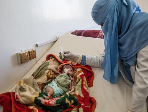 een ondervoedde baby krijgt zorgen